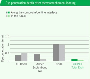 iBOND Total Etch – Outstanding marginal integrity
