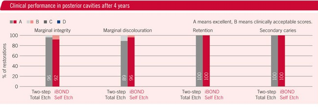 iBOND Self Etch – Clinically proven